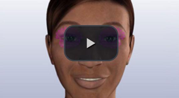 Cirugía de los Párpados Animación en 3D Inferior vía Exterior Marbella Ocean Clinic