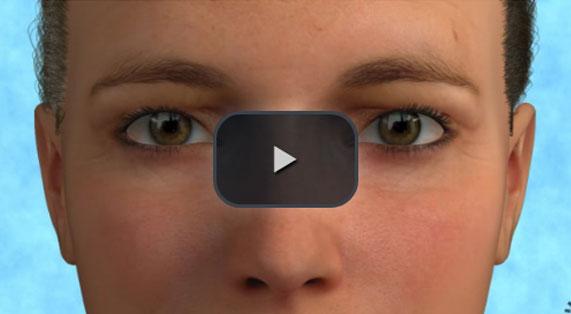 Cirugía de los Párpados Animación en 3D Superior Marbella Ocean Clinic