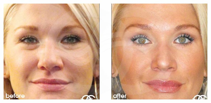 Blepharoplasty before and after real clinical case 02