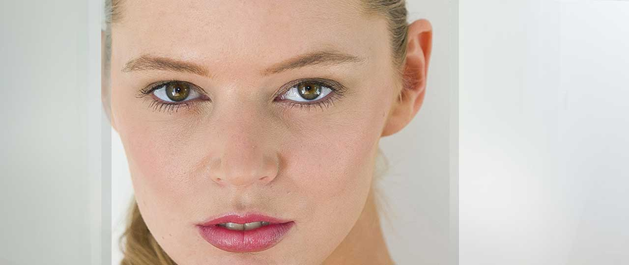 Eyelid Surgery More About Blepharoplasty Marbella Ocean Clinic