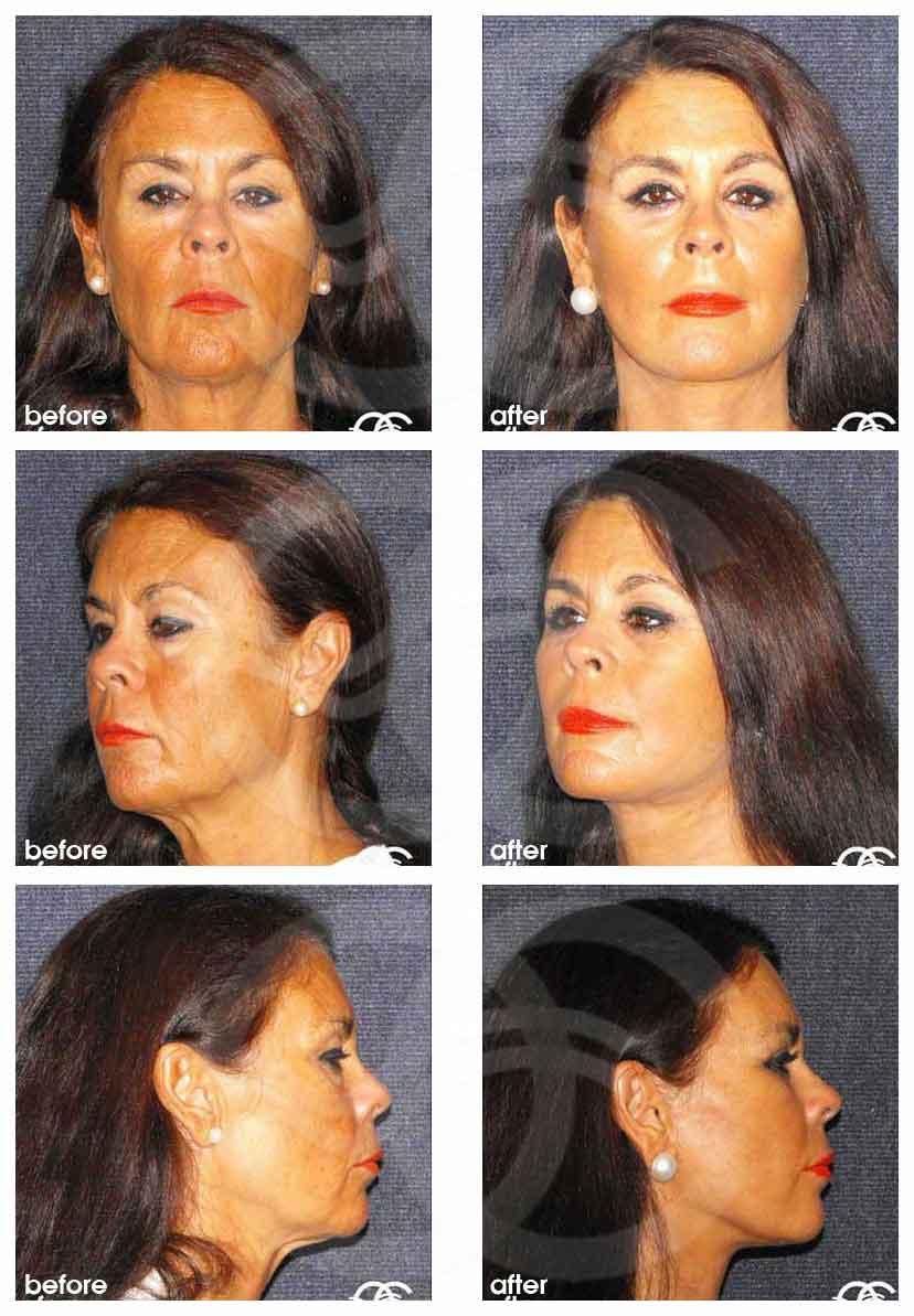 Chirurgie des Paupières Ocean Clinic Marbella Espagne