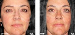Eyelid Surgery Before After Blepharoplasty Photo Ocean Clinic case 01 Marbella
