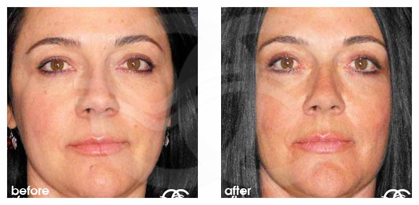 Eyelid Lift SIMULTANEOUS RECOVERY before after forntal