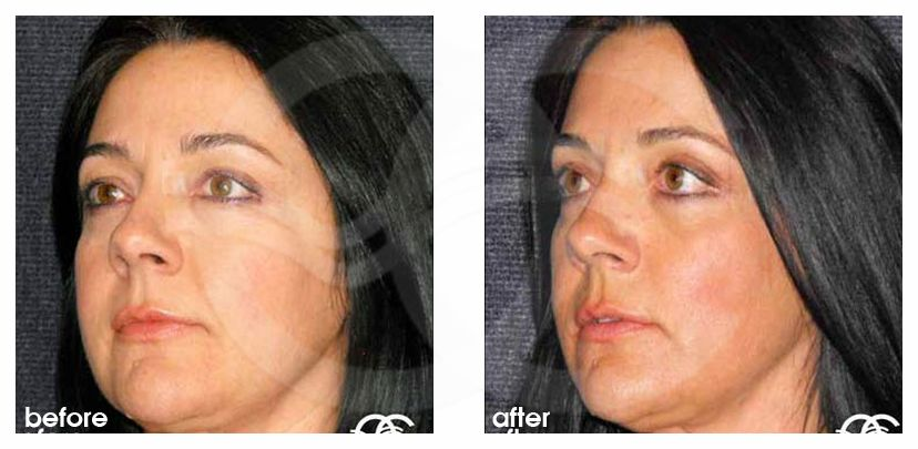 Eyelid Lift SIMULTANEOUS RECOVERY before after side