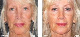Eyelid Surgery Before After Blepharoplasty Photo Ocean Clinic case 02 Marbella