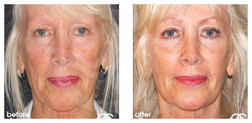 Eyelid Lift REMOVAL BAGS UNDER EYES before after forntal