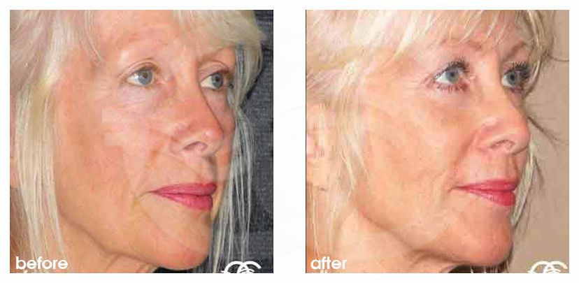 Eyelid Lift REMOVAL BAGS UNDER EYES before after side