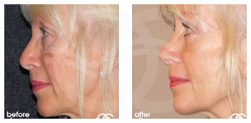 Eyelid Lift REMOVAL BAGS UNDER EYES before after perfil