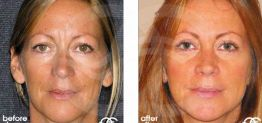 Eyelid Surgery Before After Blepharoplasty Photo Ocean Clinic case 03 Marbella