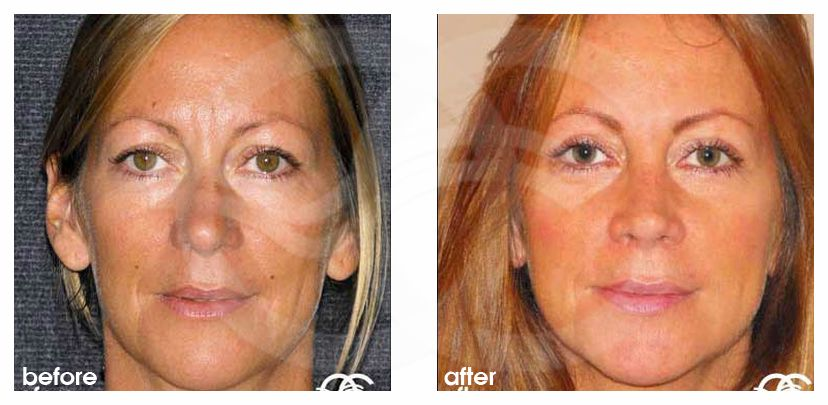 Eyelid Surgery Before After Blepharoplasty simultaneous recovery Photo frontal Marbella Ocean Clinic