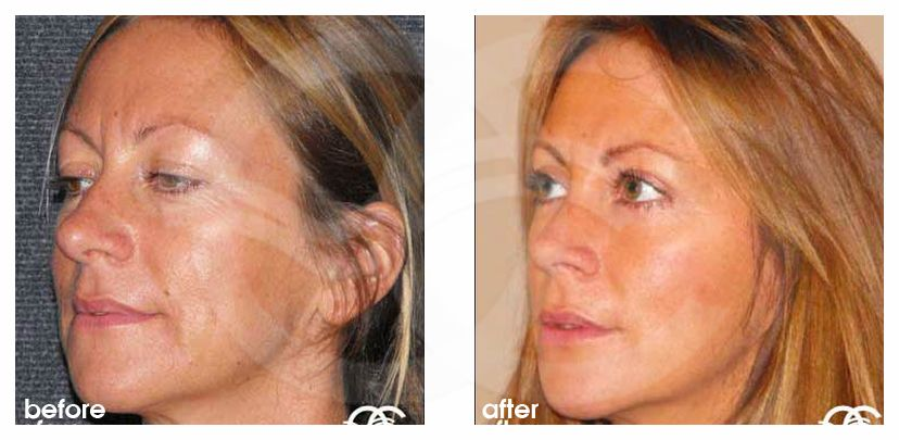 Eyelid Surgery Before After Blepharoplasty simultaneous recovery Photo side Marbella Ocean Clinic