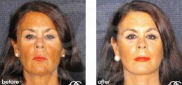 Eyelid Surgery Before After Blepharoplasty Photo Ocean Clinic case 04 Marbella