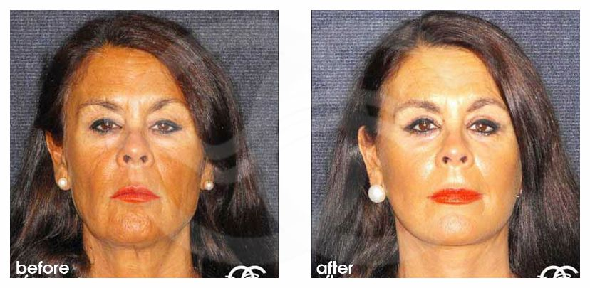 Eyelid Surgery Before After Blepharoplasty Removal Bags under eyes Photo frontal Marbella Ocean Clinic