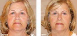 Eyelid Surgery Before After Blepharoplasty Photo Ocean Clinic case 05 Marbella