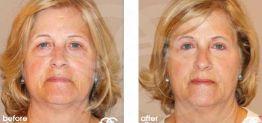 Cirugía de Nariz Antes y Después Foto Ocean Clinic caso 05 Marbella Málaga