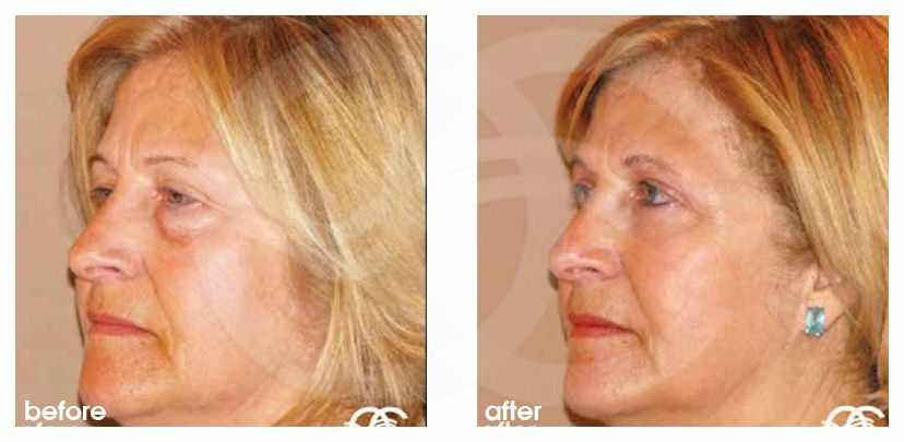 Eyelid Surgery Before After Blepharoplasty Eye Bags Removal Photo side Marbella Ocean Clinic