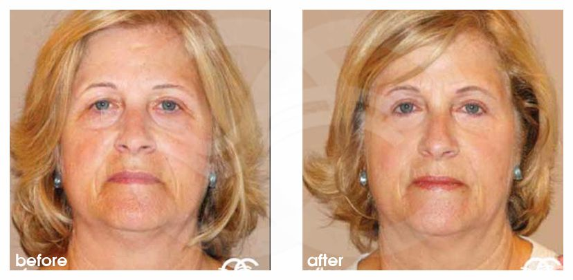 Eyelid Surgery Before After Blepharoplasty Upper Eyelids Photo frontal Marbella Ocean Clinic