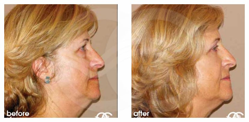 Eyelid Lift UPPER EYELIDS before after perfil