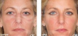 Eyelid Surgery Before After Blepharoplasty Photo Ocean Clinic case 07 Marbella