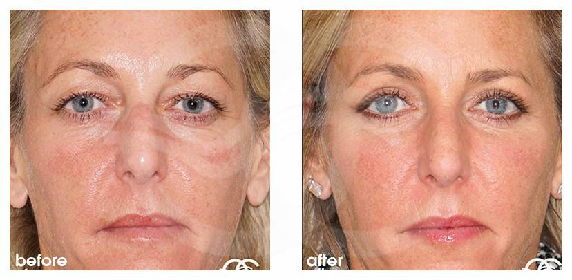 Eyelid Surgery Before After Blepharoplasty Photo frontal Marbella Ocean Clinic