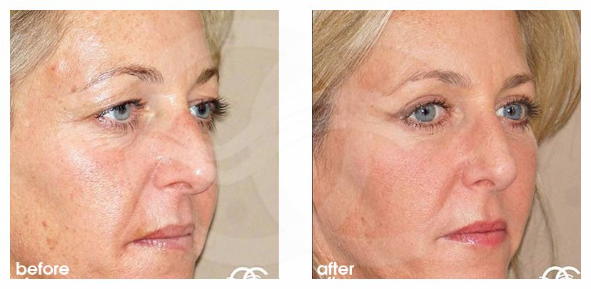 Eyelid Surgery Before After Blepharoplasty Photo side Marbella Ocean Clinic