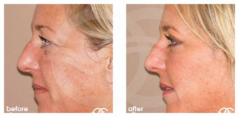 Eyelid Surgery Before After Blepharoplasty Photo profile Marbella Ocean Clinic
