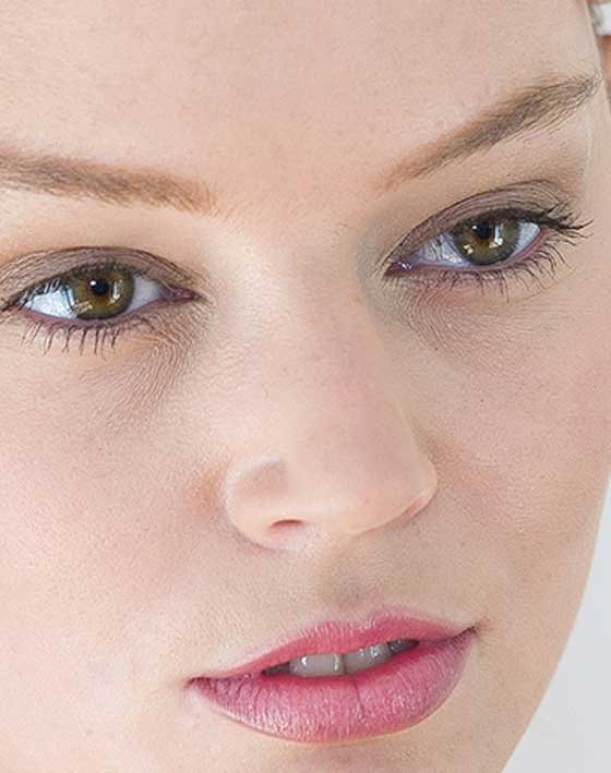 Eyelid Surgery Review Blepharoplasty Marbella Ocean Clinic