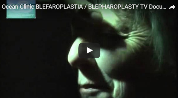 Eyelid Surgery Video Blepharoplasty Documentary 1 Ocean Clinic Marbella