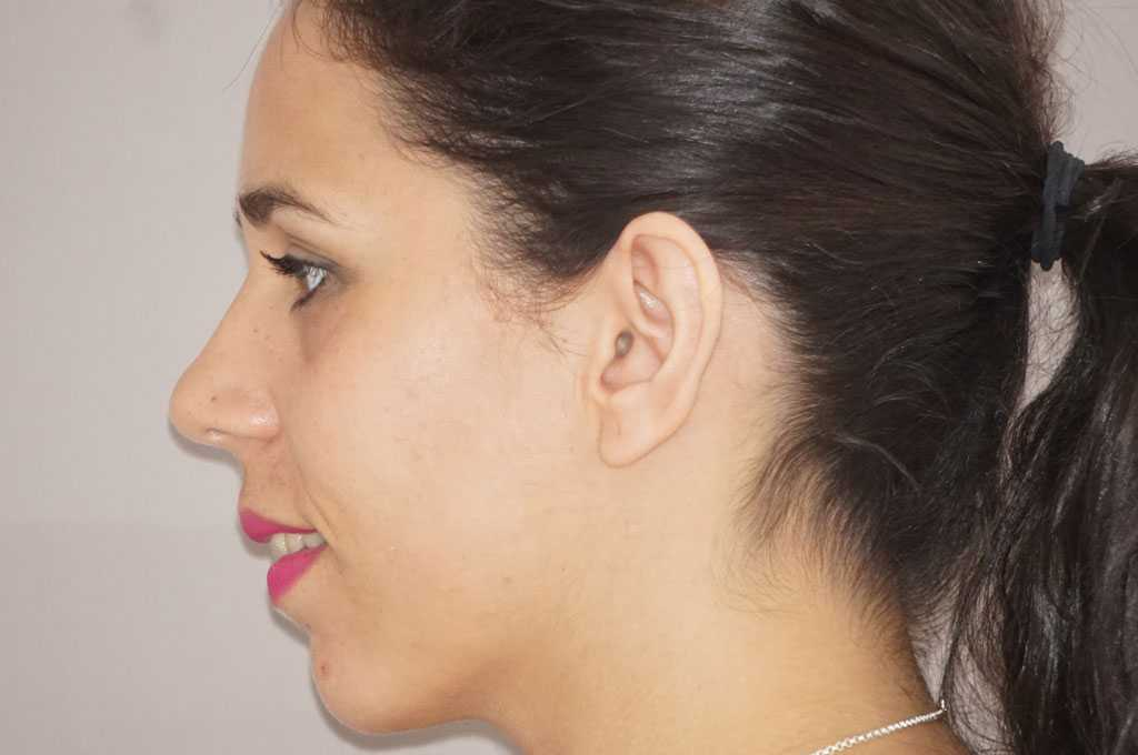Ear Correction  before profile