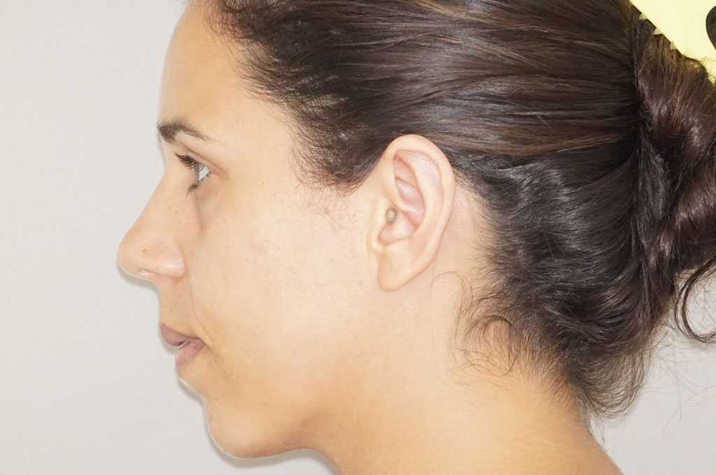Ear Correction Ear Reshaping Antihelixplasty after profile
