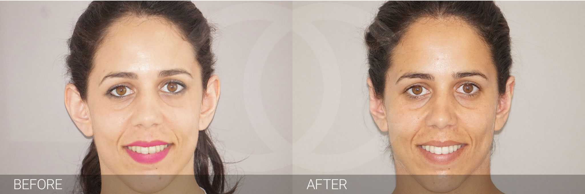 Ear Correction Ear Reshaping Antihelixplasty ante/post-op I