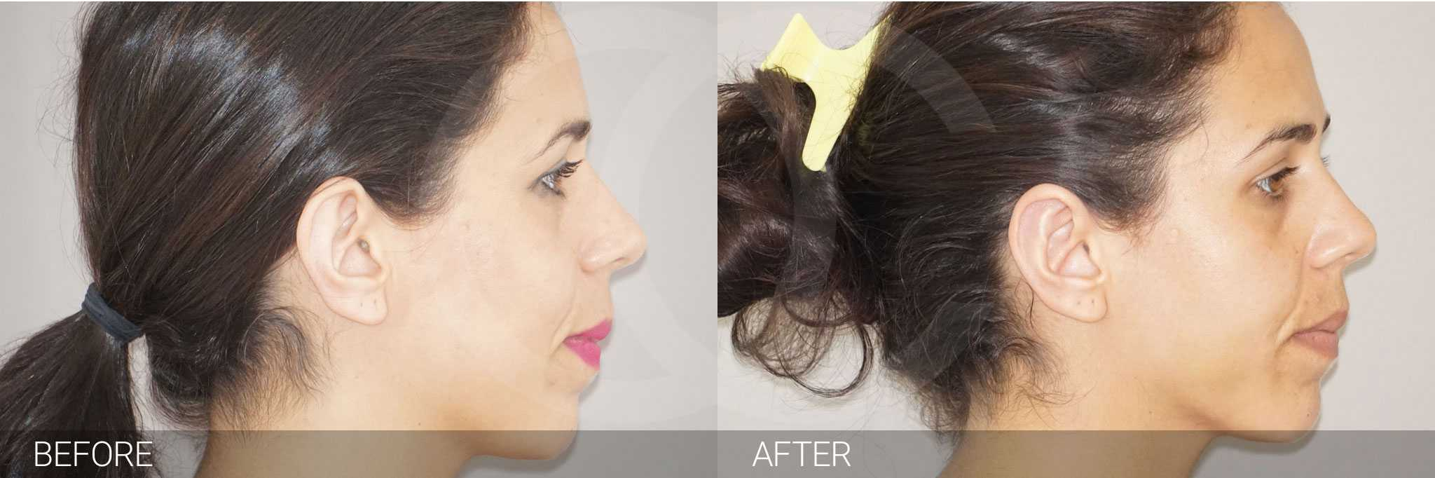 Ear Correction Ear Reshaping Antihelixplasty ante/post-op II