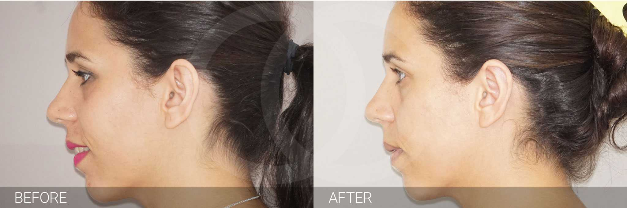 Ear Correction Ear Reshaping Antihelixplasty ante/post-op III