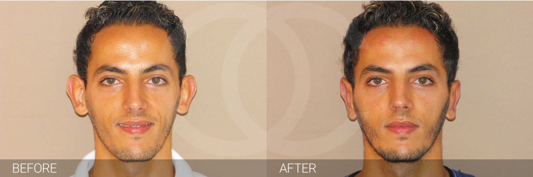 Ear correction surgery photo before and after