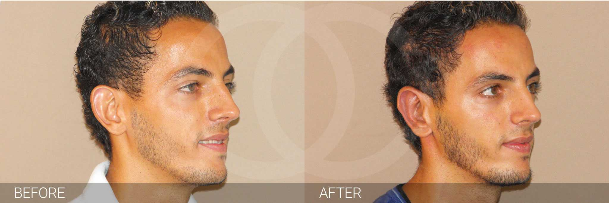 Ear Correction Concha Reduction and Antihelixplasty ante/post-op II