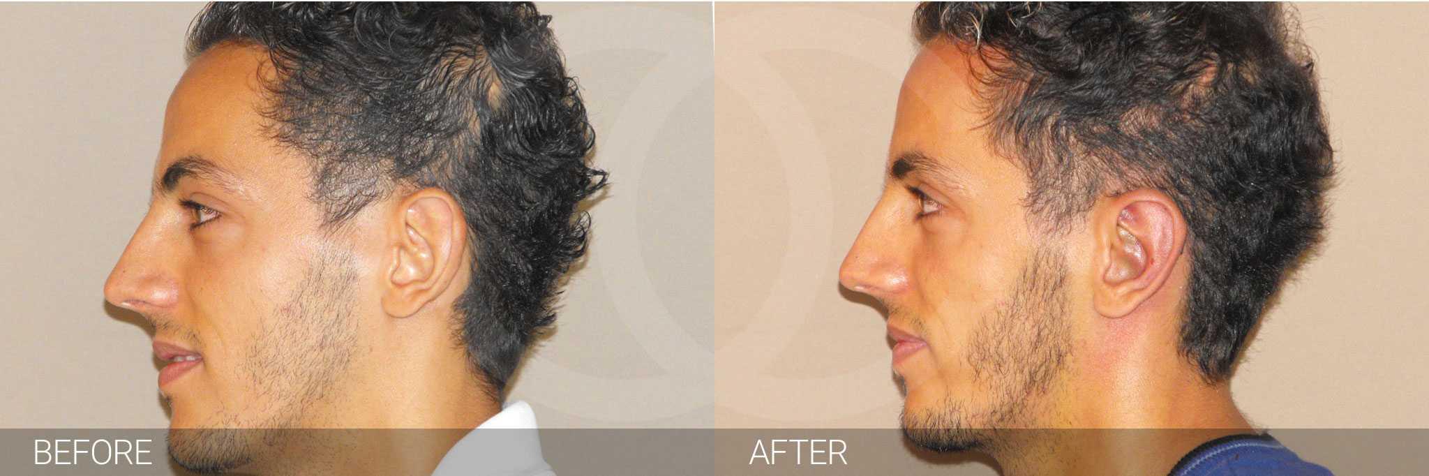 Chirurgie des oreilles 2 ante/post-op III