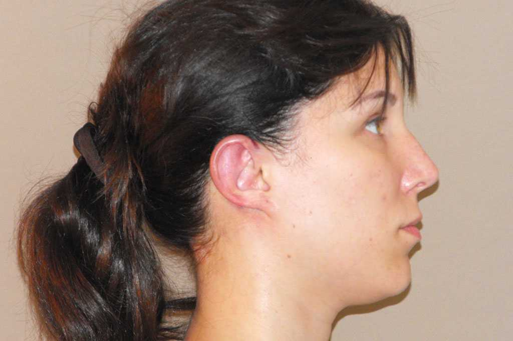 Ear Correction Otoplasty after side