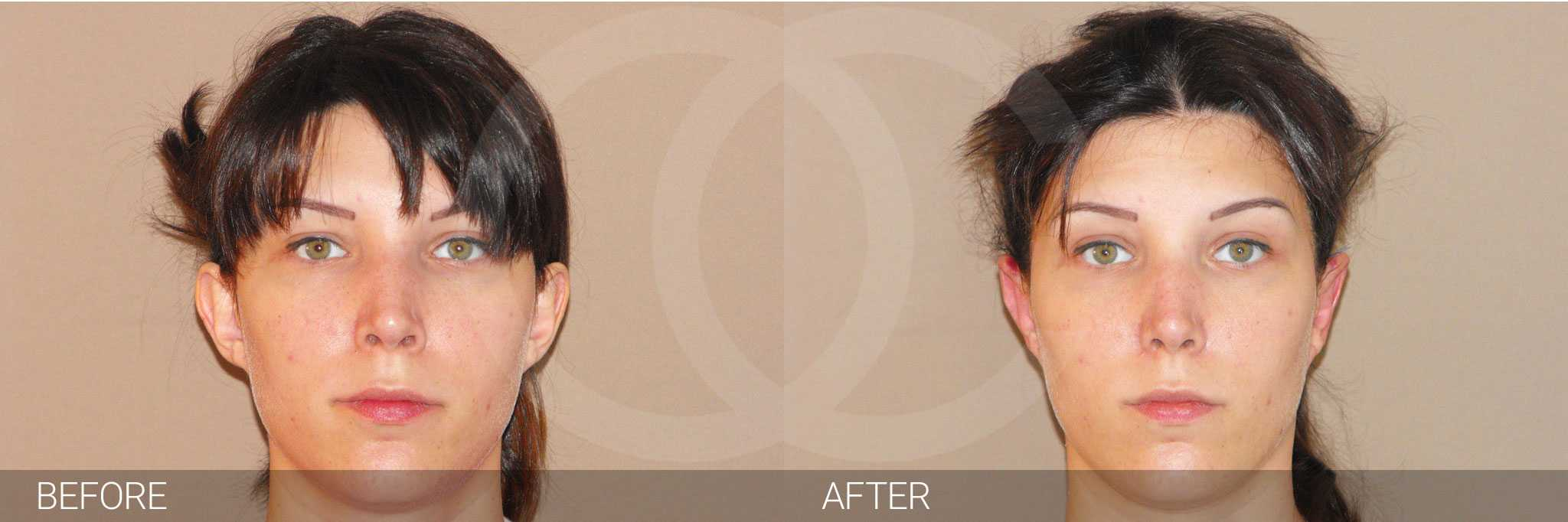 Chirurgie des oreilles 3 ante/post-op I