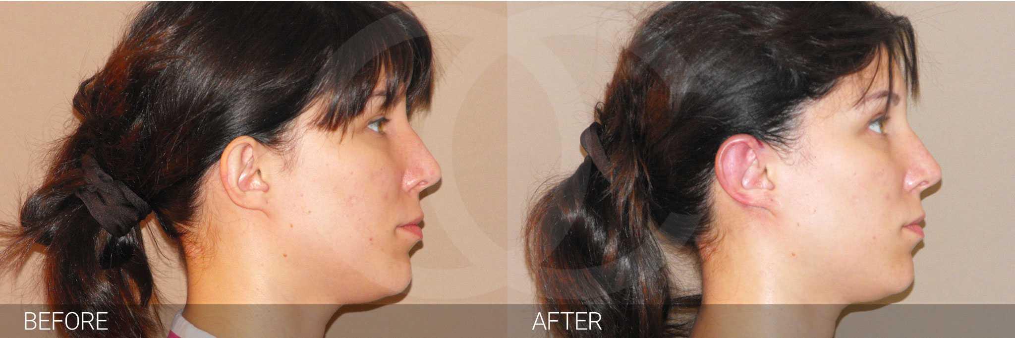 Chirurgie des oreilles 3 ante/post-op II