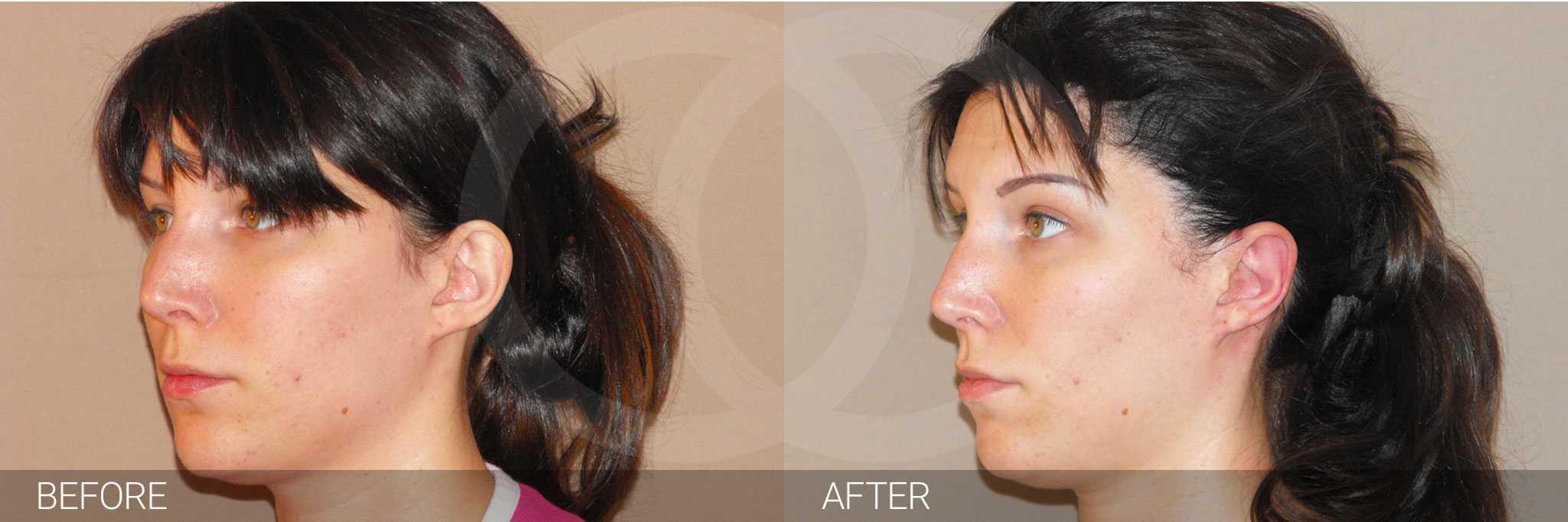 Chirurgie des oreilles 3 ante/post-op III