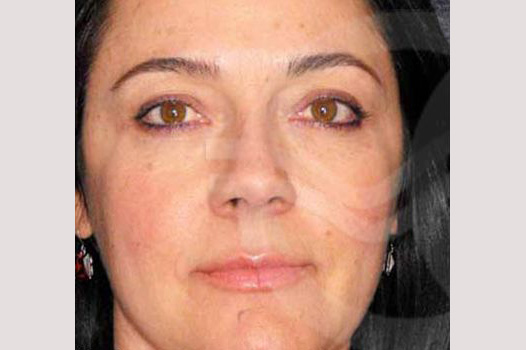 Eyelid Lift SIMULTANEOUS RECOVERY before forntal