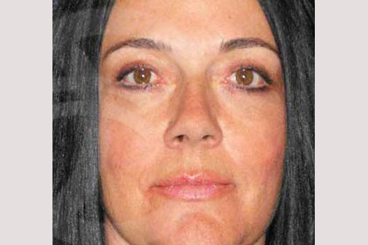Eyelid Lift SIMULTANEOUS RECOVERY after frontal