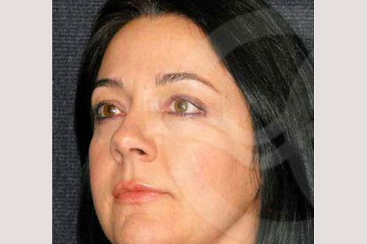 Augenlidstraffung OBERLID UND UNTERLID before side