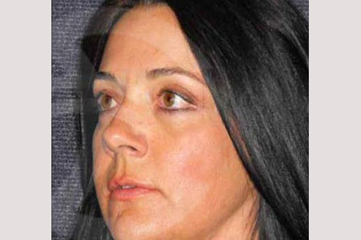 Eyelid Lift SIMULTANEOUS RECOVERY after side