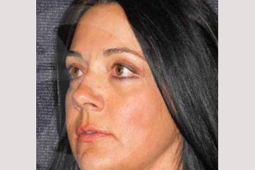 Augenlidstraffung OBERLID UND UNTERLID after side