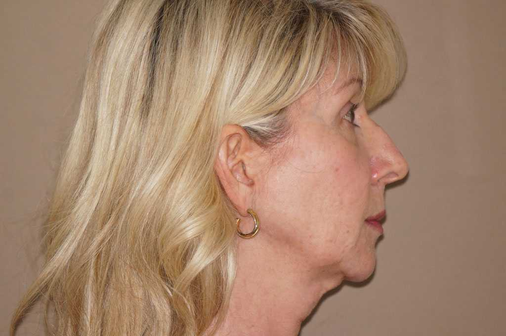 Eyelid Lift UPPER AND LOWER TOGETHER before profile