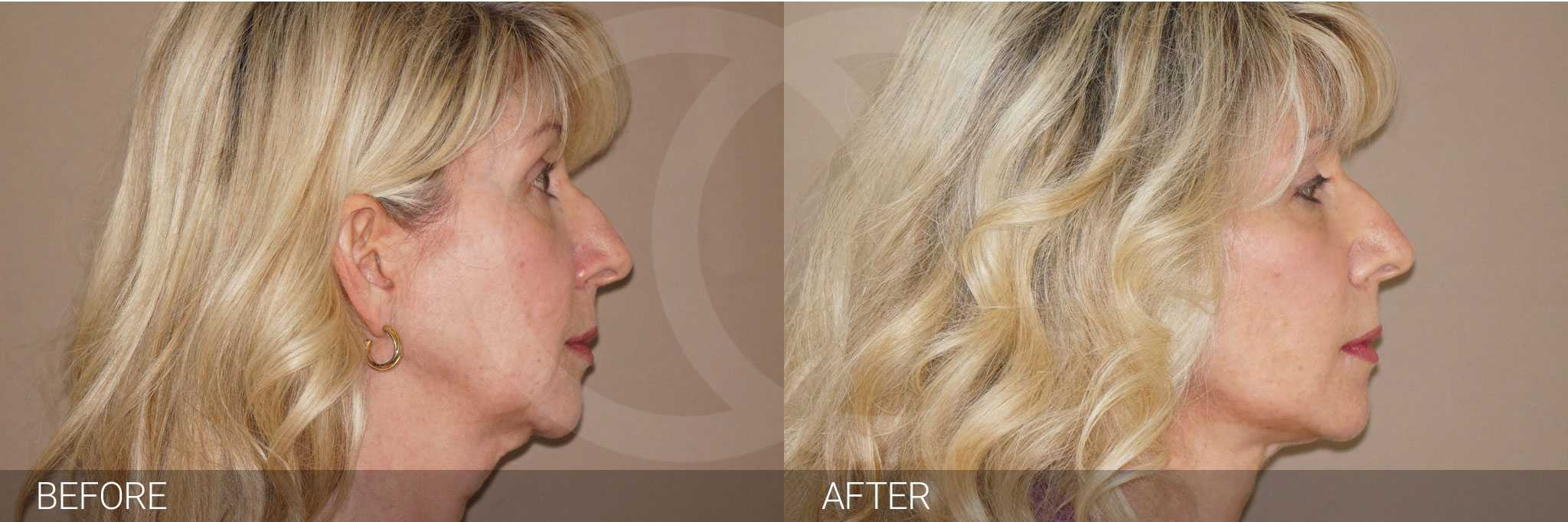 Eyelid surgery blepharoplasty photo before and after