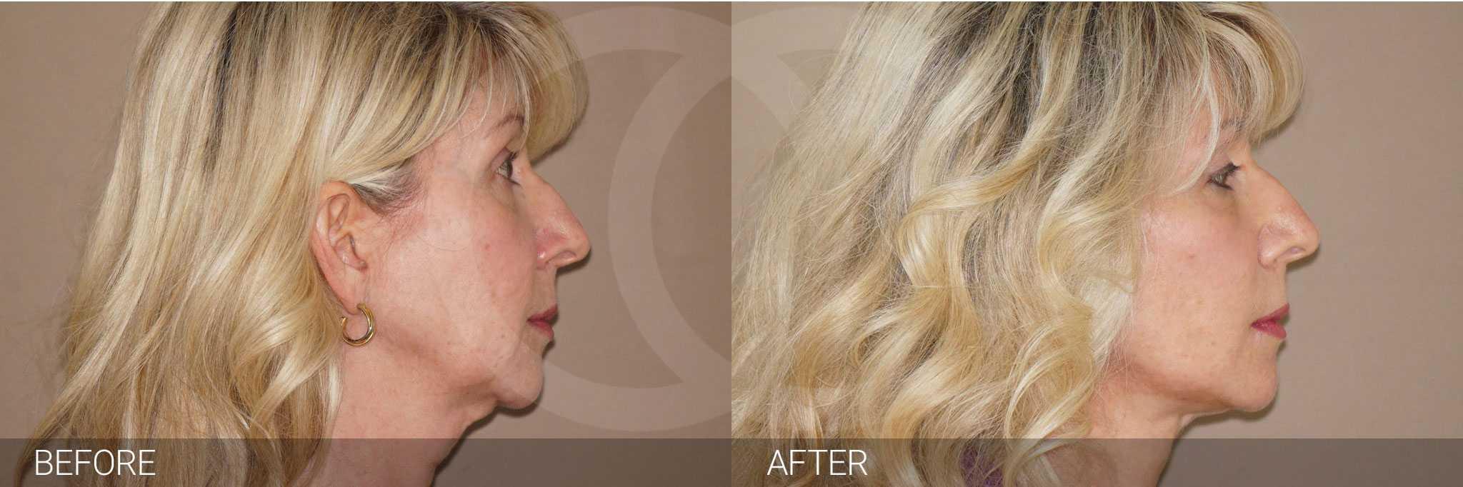 Cirugía de párpados foto antes y después