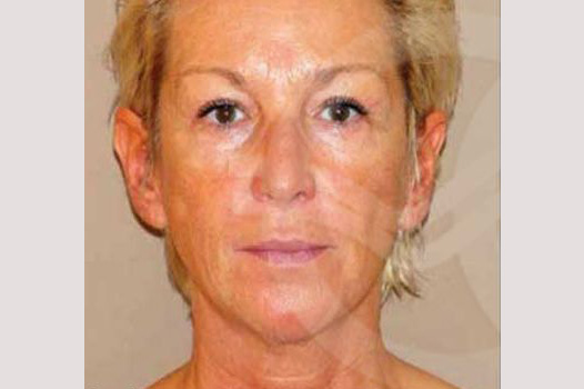 Face and Neck Lift PAVE-lift before forntal