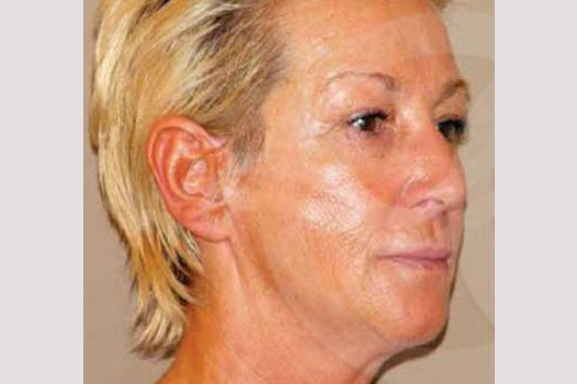 Face and Neck Lift PAVE-lift before side